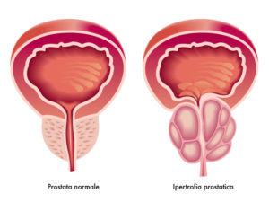 ipertrofia-prostatica